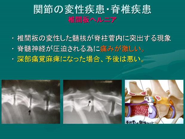 15.関節の変性疾患・脊椎疾患 椎間板ヘルニア