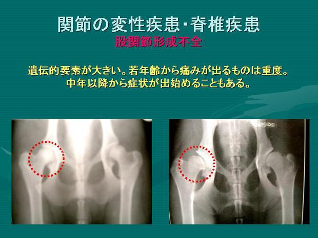 16.関節の変性疾患・脊椎疾患 股関節形成不全