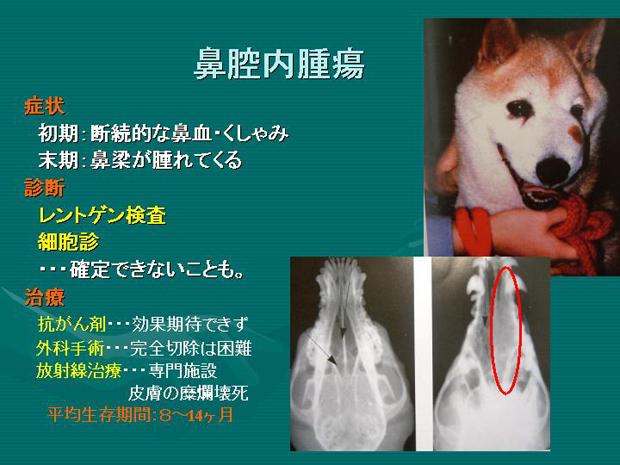 25.鼻腔内腫瘍