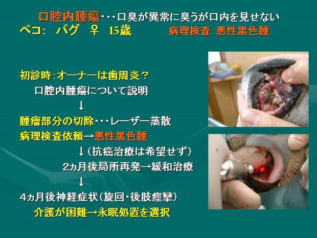 31.口腔内腫瘍
