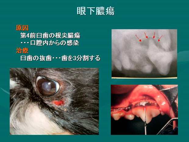 32.眼下膿瘍